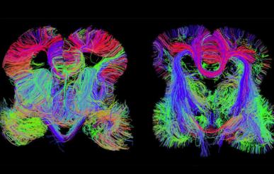 beyin-haritası